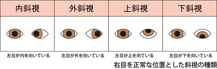 斜視の説明画像
