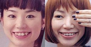 YUKIの歯列矯正画像比較