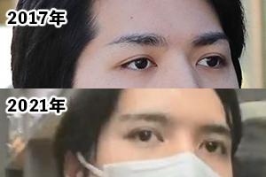 小室圭の顔が変わった画像比較
